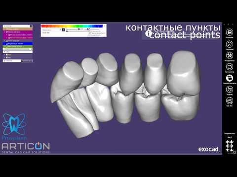 ▷ Exocad + Dentograf | CADxBIM