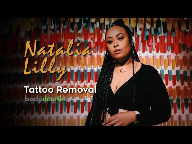 Tattoo Removal Progress Video | Natalia Lilly | Body Details