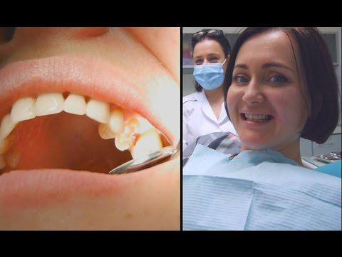 Гранулема зуба - причины, симптомы и лечение гранулем