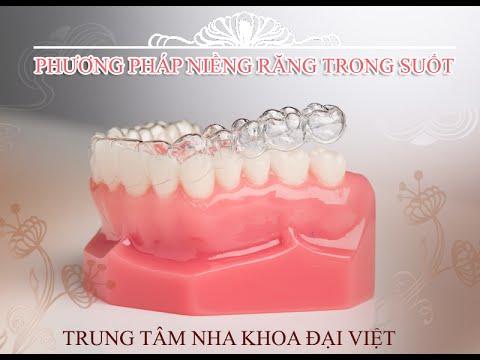 Niềng Răng Trong Suốt - Niềng răng không mắc cài