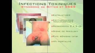Staphylocoque Doré 2