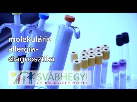 fruktóz-tesztdiéta