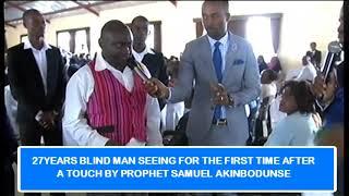 SHOCKING 27-Year-Old Man Born Blind gets healed during Pro Samuel Akinbodunse crusade in Namibia