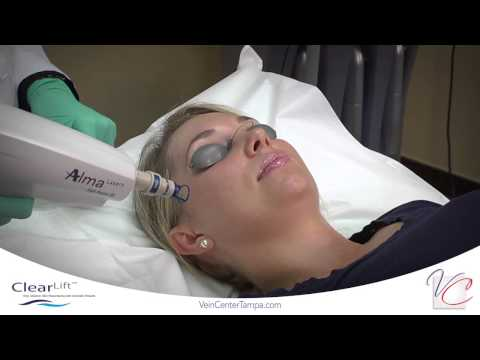 ClearLift (Q-Switched) Yag - Vein & Cosmetic Center of Tampa Bay