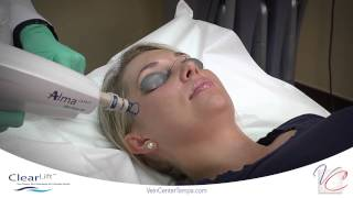 ClearLift (Q-Switched) Yag - Vein & Cosmetic Center of Tampa Bay Thumbnail