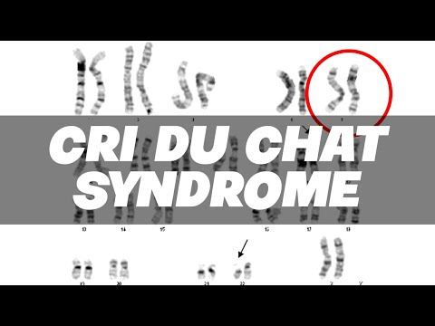 Cri Du Chat Syndrome (CdCS Or 5p-)