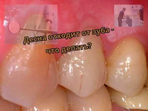Болит десна внизу зуба