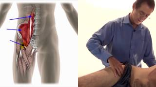 Video Trigger Point Therapy - Iliopsoas download MP3, 3GP, MP4, WEBM, AVI, FLV Juli 2018
