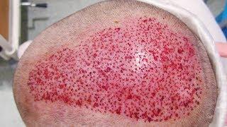Операция Трансплантации Волос. Отличие от Лоскутного Метода Восстановления Волос. Говорит ЭКСПЕРТ