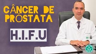 Câncer de próstata | Tratamento | HIFU | Indicação | Vantagens | Desvantagens | Urologista