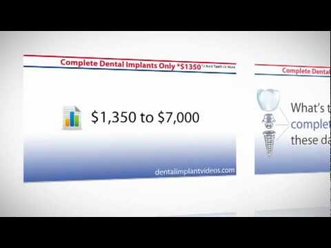dental-implants-cost---affordable-vs.-expensive