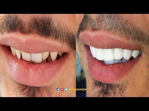 المغاربة و'هوليوود سمايل'..تعرف على طريقة وأسعار الحصول على ابتسامة النجوم