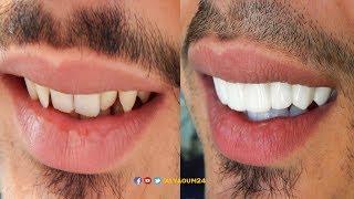 """المغاربة و""""هوليوود سمايل""""..تعرف على طريقة وأسعار الحصول على ابتسامة النجوم"""