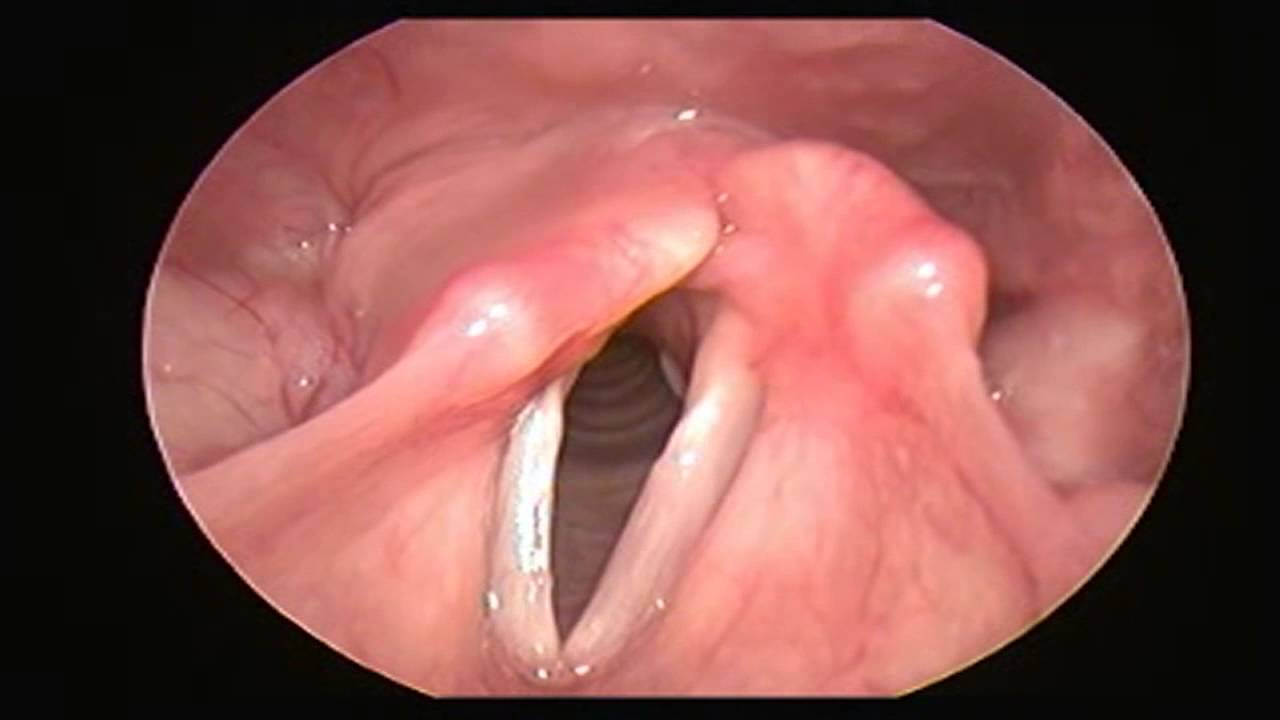 content vocal cord paralysis