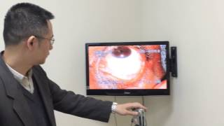 Eye Diagnosis and Chinese Medicine: shoulder Pain ? Tendinitis ?