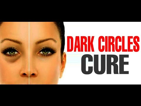 Home Remedies for Dark Circles, Puffy Eyes, Eye Bags Naturally | Cure & Treatment