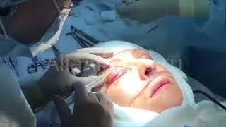 Блефаропластика верхних век: анестезия верхнего века