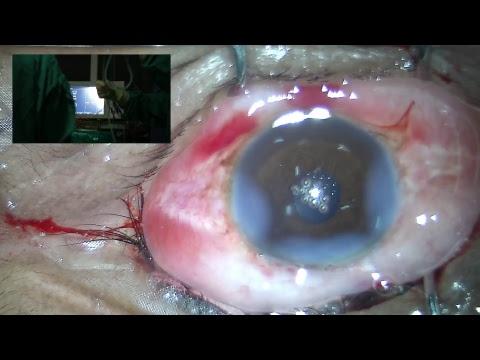 Seva Sadan Live Surgery