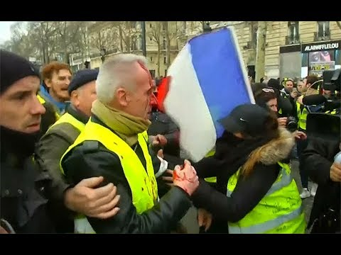 The Jim Colbert Show - Sensitive To Some Viewers!! Protester has hand partially blown off in Paris
