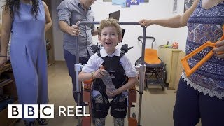 The boy with the robot body - BBC REEL