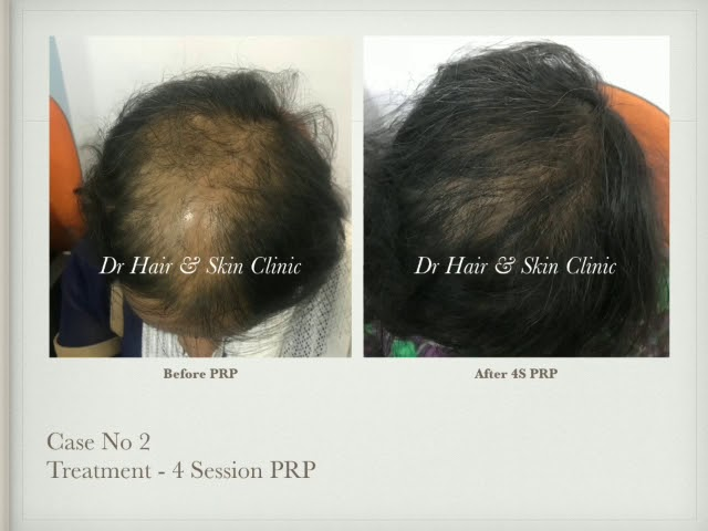 prp treatment for hairloss