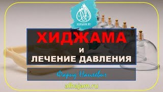 Хиджама нормализует давление ч 1 Обучение хиджаме