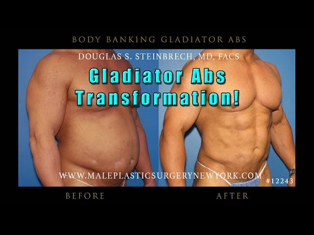 Gladiator Abs body implants for men in NYC