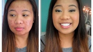 My Current Acne Coverage Foundation Routine! Thumbnail