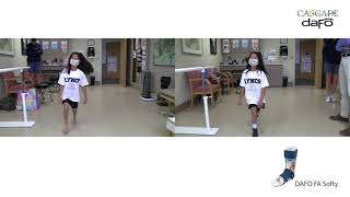 Before and After: Excess Dorsiflexion/Crouching | DAFO FA Softy
