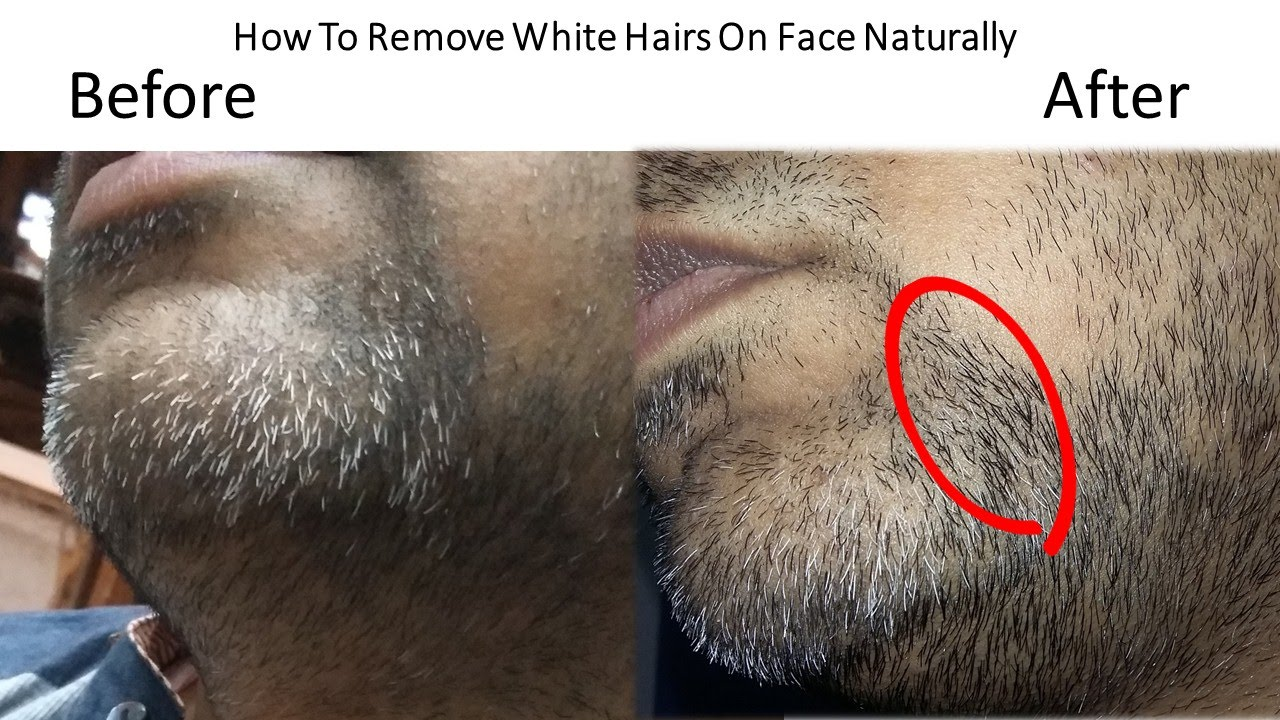 How To Grow White Hair Naturally