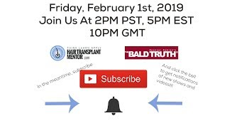 The Bald Truth! Friday February 1st, 2019