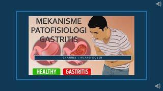 Misoprostol 200 mcg tablet Jenis obat Analog prostaglandin anti-ulkus Golongan Obat resep Manfaat Me.