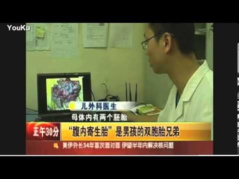 Two year old Chinese boy pregnant with sibling inside   Mail Online mp4