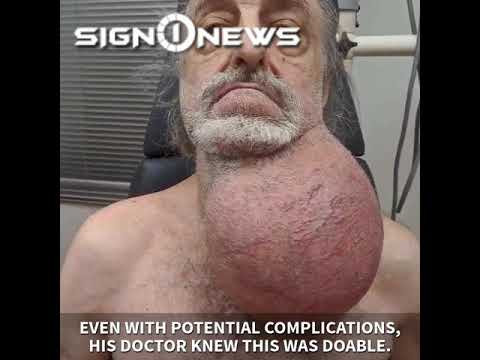 Eddie & Rocky - VIDEO: Soccer Ball-Sized Tumor Removed From Man's Neck