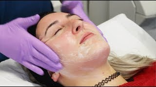 Image Perfection Peel with Elizabeth | The Laser and Skin Clinic