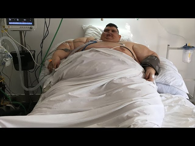 World's 'heaviest man' undergoes surgery