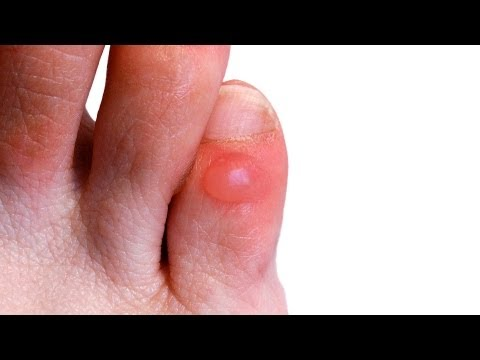 How To Prevent Treat Foot Blisters