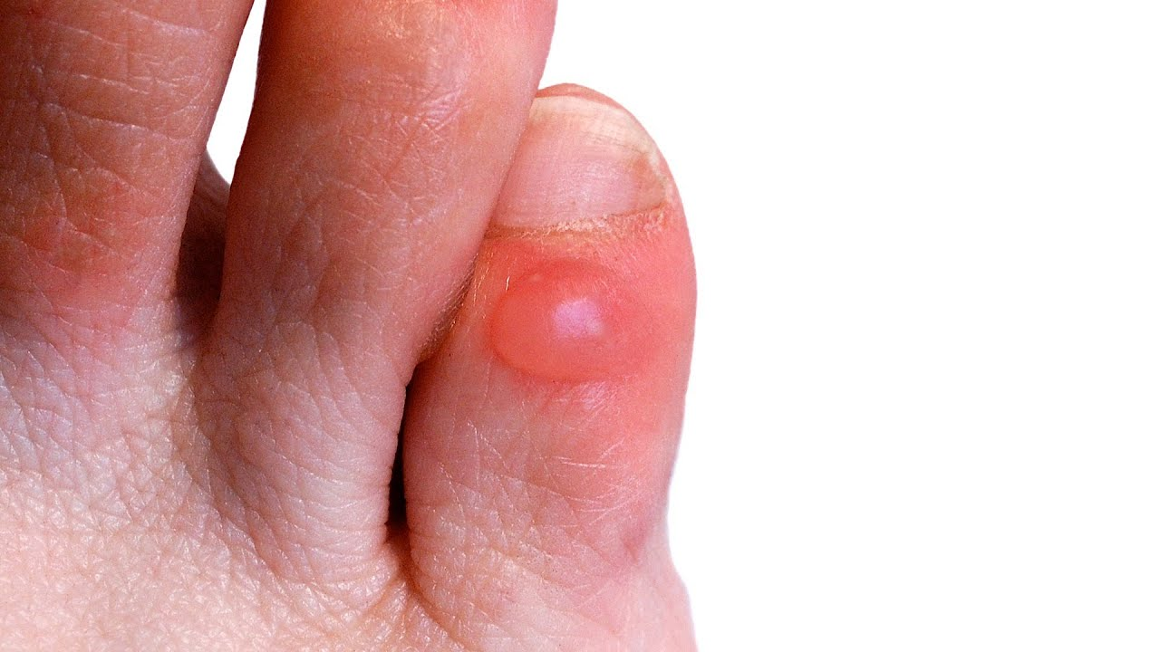Forum on this topic: 5 Ways To Keep Your Feet Blister , 5-ways-to-keep-your-feet-blister/