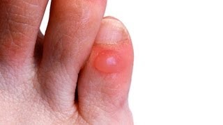 How to Prevent & Treat Foot Blisters | Foot Care