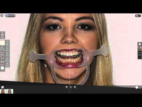 Smile Designer Pro Intro Webinar
