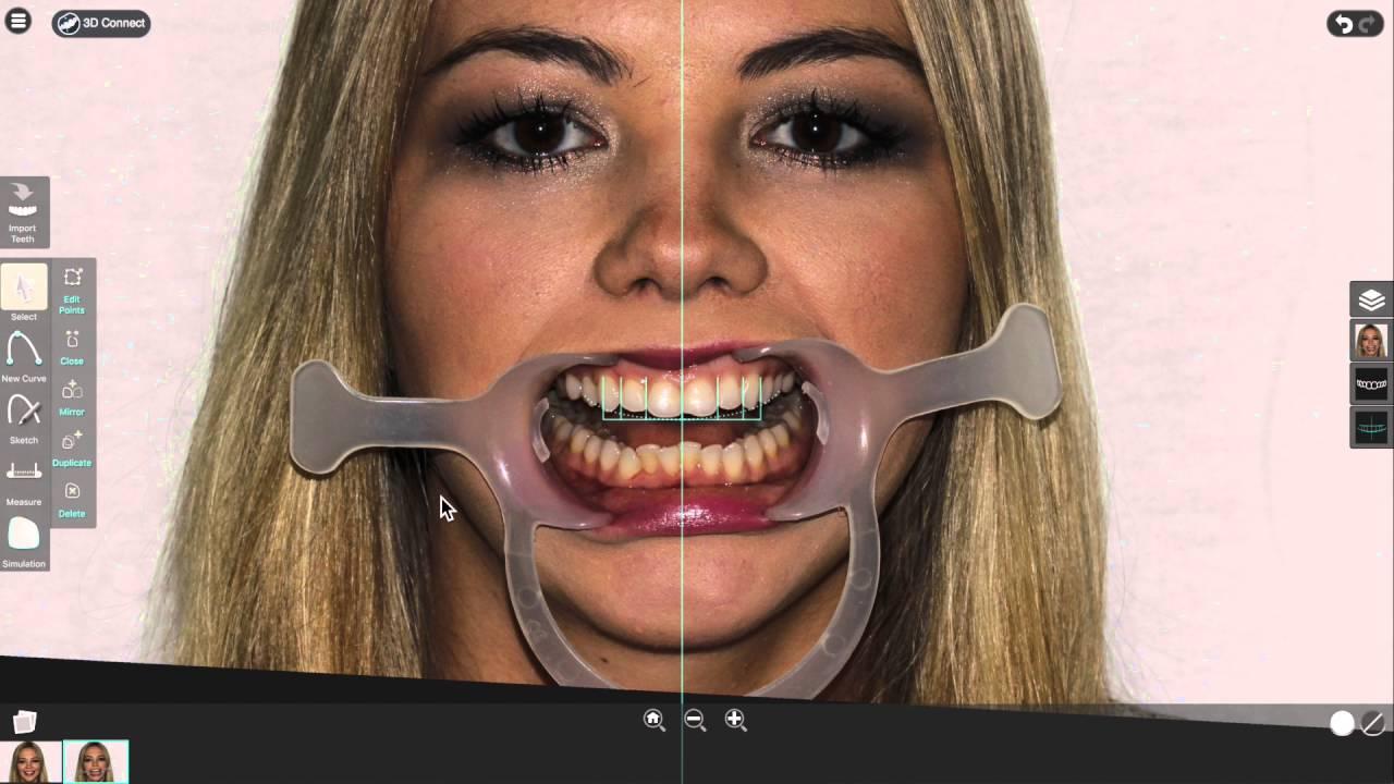 smile designer pro intro webinar youtube