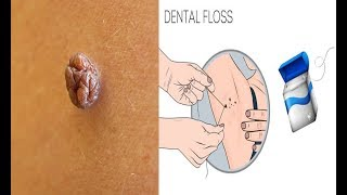 How to Get Rid of Skin Tags on Your Armpits