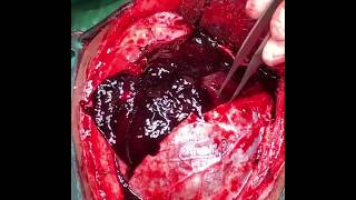 A hematoma is the swelling of clotted blood within the tissues, sometimes resembling currant jelly f.
