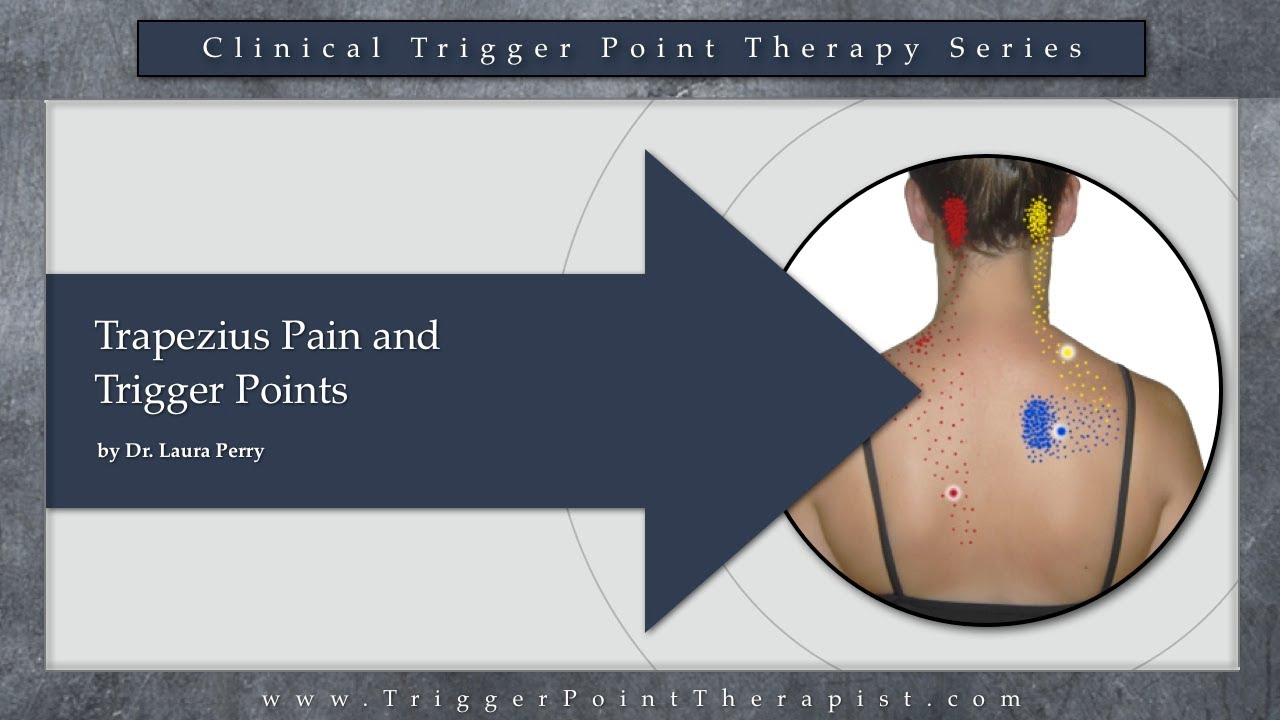Trapezius Pain and Trigger Points - YouTube