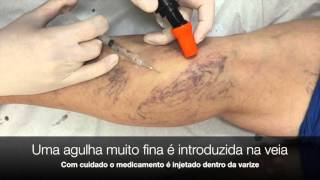 Escleroterapia de da tamanho agulha