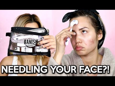DERMAL ROLLING TO GET RID OF ACNE SCARS  (BEFORE & AFTER)| LOVE IT OR LEAVE IT REVIEW