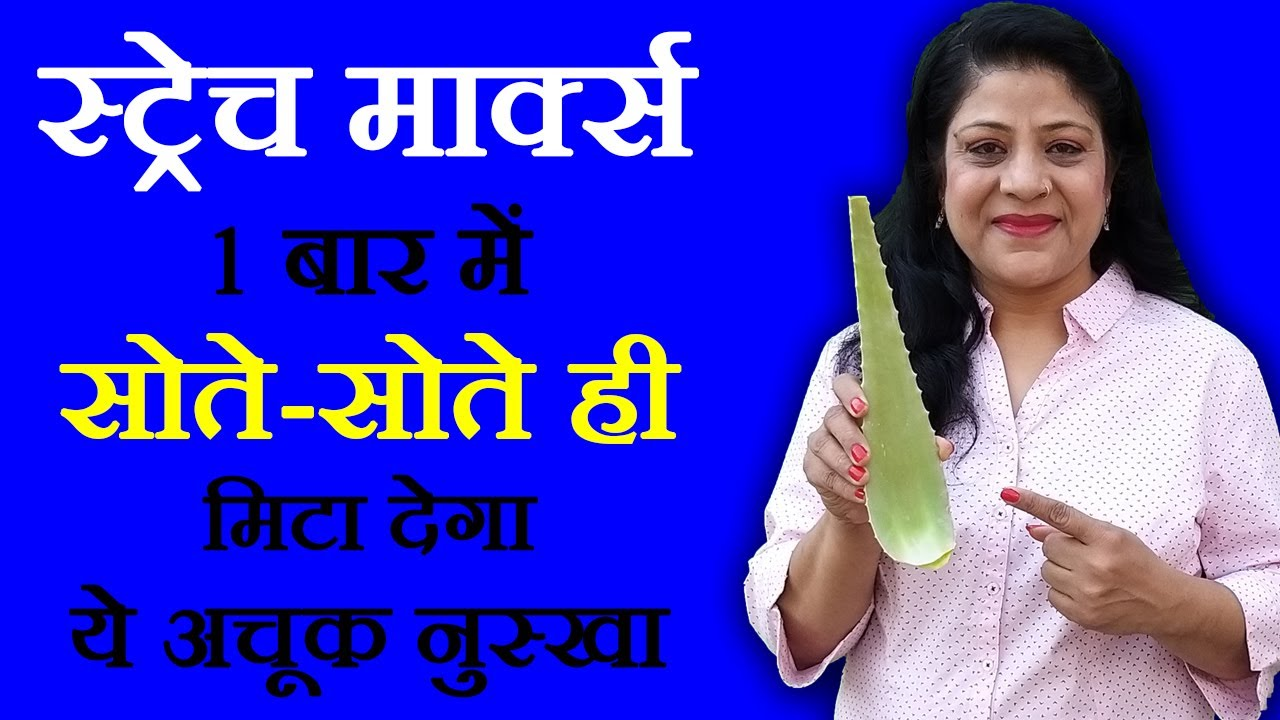 foto Stretch marks and their treatment in Hindi Video