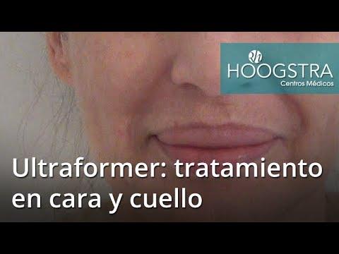 Tratamiento Ultraformer en cara y cuello (17066)