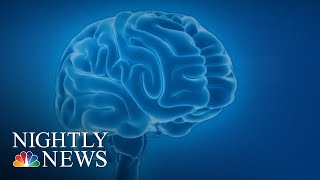 new drug could slow down progression of alzheimers nbc nightly news