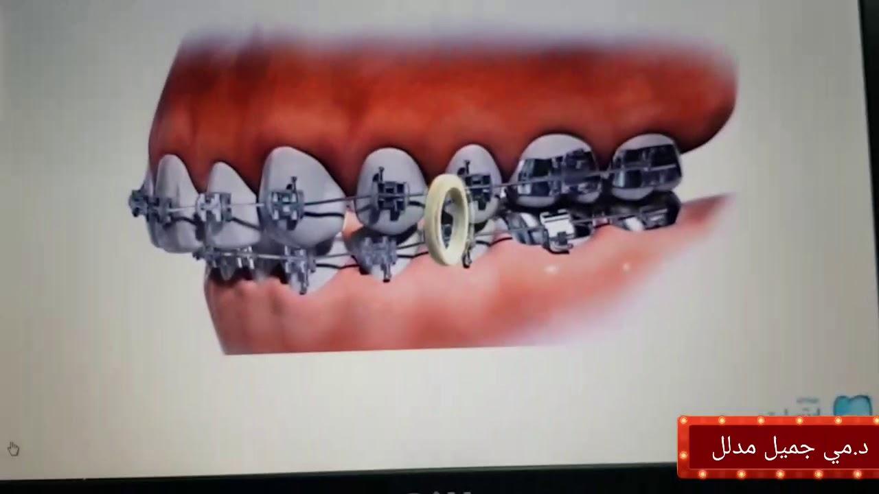 وظيفة المطاط في تقويم الاسنان استمتع بالمشاهده Youtube